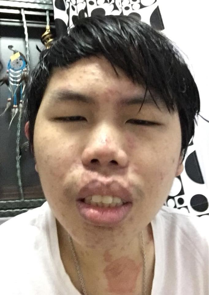 Rashes On Face